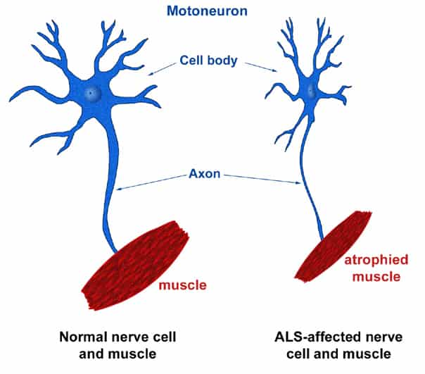 Amyotrophic Lateral Sclerosis Lou Gherig S Disease