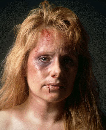 Battered Women's Syndrome: Origins, Theory, Post Traumatic ... Battered Women Pictures