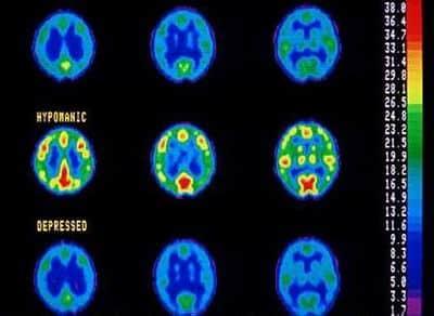 bipolar disorder Bipolar Disorder: History, Causes, Treatment