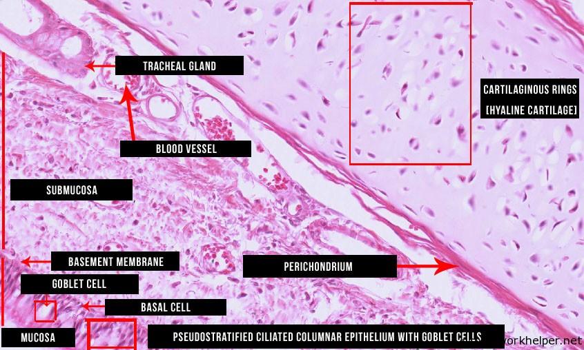 trachea-slide-labelled-histology | Online Homework Help ...