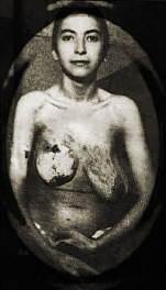 Josef Mengele experiments Josef Mengele: Biography & Experiments