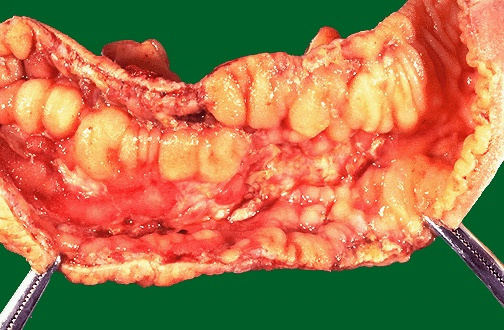 Crohn S Disease Causes Symptoms Treatment